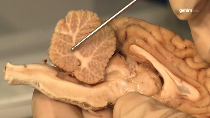 Mediathek - Video | Anatomie vom Schafhirn: Cerebellum oder ...
