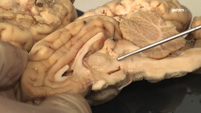Mediathek - Video | Anatomie vom Schaf-Gehirn: Diencephalon mit ...