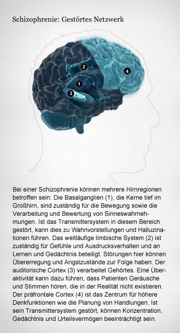 Schizophrenie: eine fehlerhafte Gehirnentwicklung?