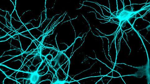 Kommunikation der Neuronen mittels Dendriten