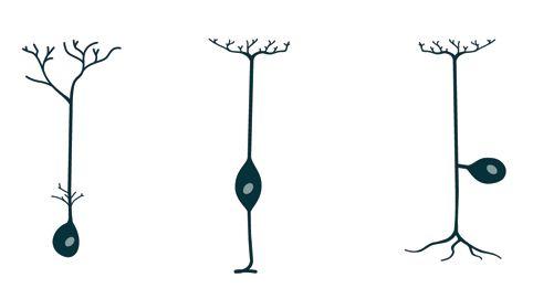 Unterschiedliche Zelltypen der Neuronen