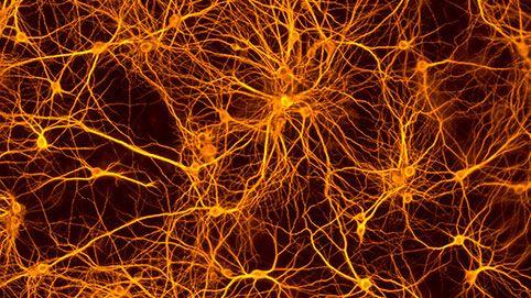 Hochverzweigtes Netzwerk der Neuronen