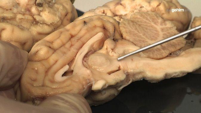 Anatomie | dasGehirn.info - der Kosmos im Kopf