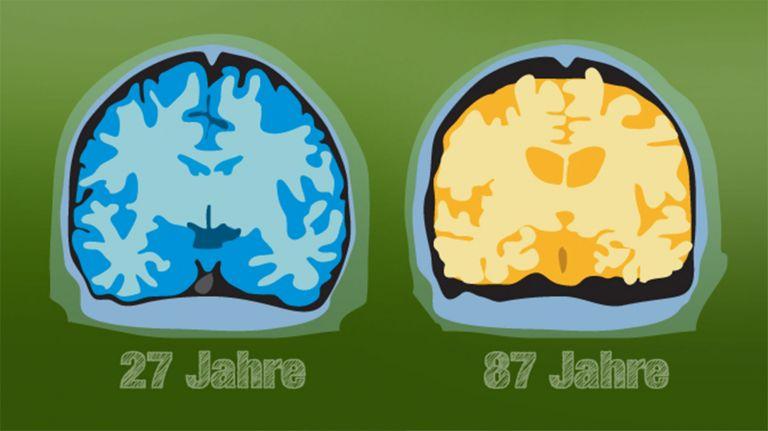 Wann hört das Gehirn auf zu reifen?