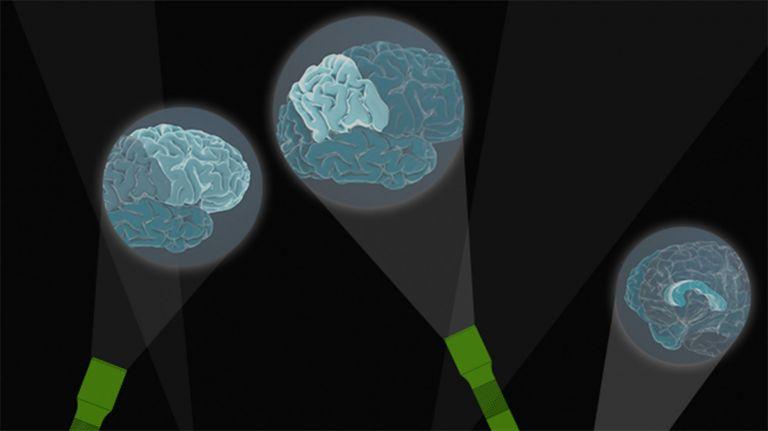 Anatomie der Intelligenz