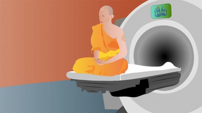 Die Neurowissenschaft der Mediation