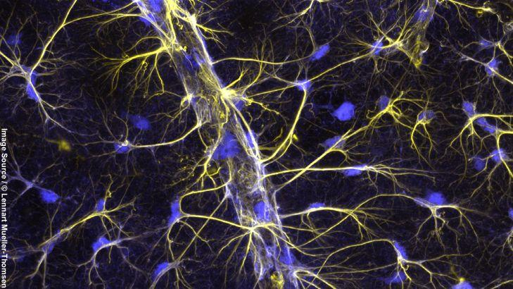 Astrozyten: Die heimlichen Stars des Gehirns