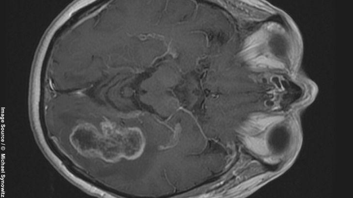 """Hirntumore: """"Gliome sind nicht heilbar"""""""