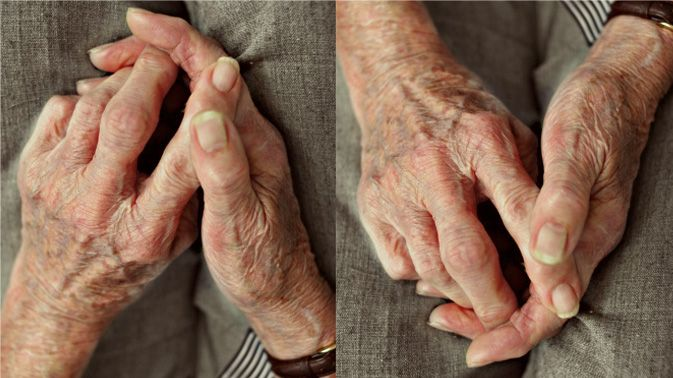 Mit dem Hirnschrittmacher gegen Parkinson