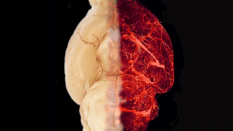 Blutgefäße im transparent erscheinenden Gehirn eines adipösen Mausmodells