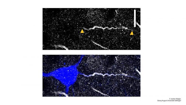 Mit Biocytin gefüllte Pyramidenzelle (blau) und ihr Axoninitialsegment (AIS; durch ßIV-Spectrin-Immuncytochemie angefärbt, grau). Maßstab: 10 µm. Nach elektrophysiologischer Charakterisierung wurden die dort gewonnen intrinsischen Membraneigenschaften mit der Länge des AIS korreliert.