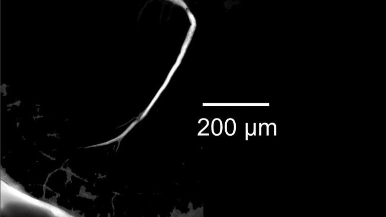 Mikroskopische Aufnahme der Mauthnerzelle eines Goldfisches (Maßstabbalken: 200 Mikrometer entsprechen 0,2 Millimeter). Durch Neurobiotin/Streptavidin-Cy3 wurde die Zelle sichtbar gemacht.