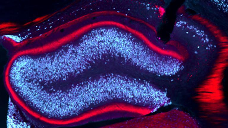 Bei einer langsamen Stimulation des Hippocampus blieben im Mausmodell die epileptischen Anfälle aus.