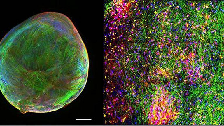 """Darstellung eines """"Bioengineered Neuronal Organoids"""" (BENO) hergestellt nach einem von Zafeiriou et al. publiziertem Verfahren."""