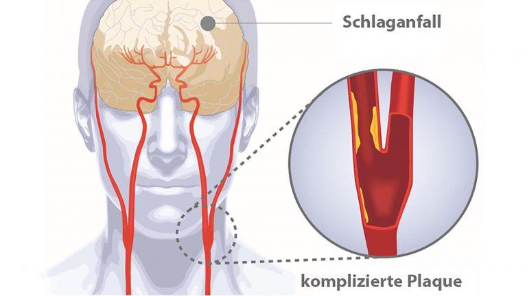 Gefährliche Plaques in der Halsschlagader
