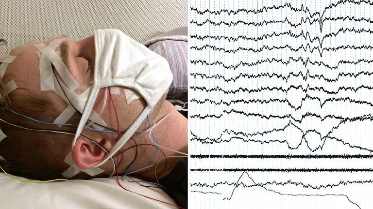 Das Bild zeigt eine Versuchsperson im Schlaflabor