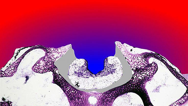 Sauerstoffverteilung um das Gewebe. Rot: Luftsauerstoff-gesättigter Bereich; Blau: komplettes Fehlen von Sauerstoff, etwa im Hirnventrikel in der Mitte