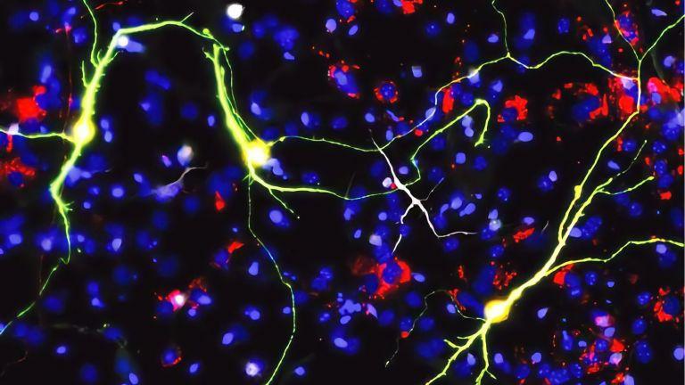 Reprogrammierte Neuronen bei Expression des proneuralen Faktors Ascl1 und neuronale mitochondriale Proteine