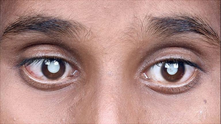 Beim Grauen Star (Katarakt) trübt sich die sonst klare Linse des Auges zunehmend