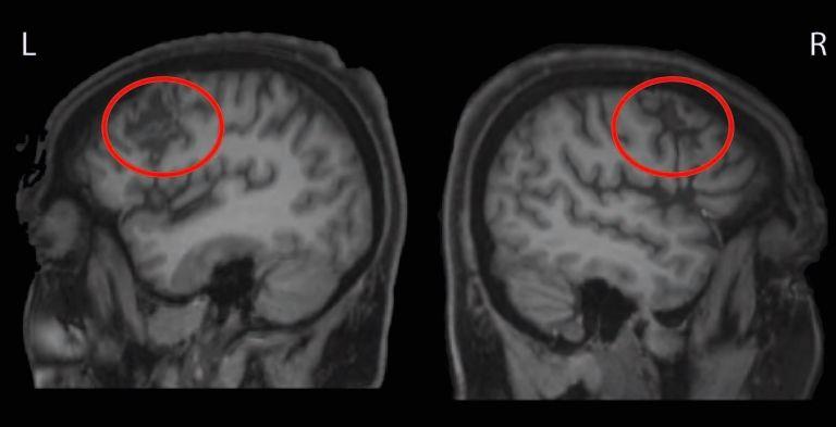 Anatomisches Bild vom Gehirn der Patientin, aufgenommen mithilfe der Magnetresonanztomographie. Die roten Kreise kennzeichnen die Läsionen auf beiden Hirnseiten, die durch die Schlaganfälle verursacht worden (L - linke Gehirnhälfte; R - rechte Gehirnhälfte).